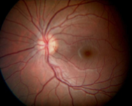 Case #1: normal appearing retina 20/20 vision