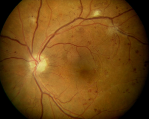 Case #3: 33 y/o male proliferative DR no bleeding 20/20 vision