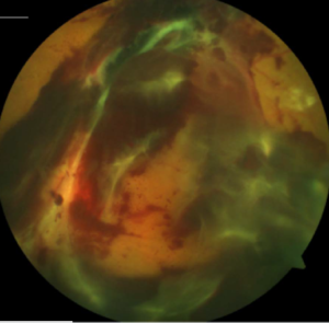 Case #4: 36 y/o female proliferative DR preretinal bleeding early retinal detachment CF vision